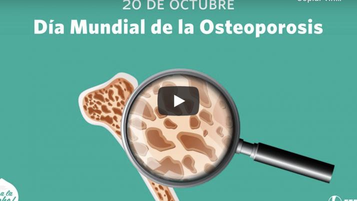 20 OCT | Día Mundial de la Osteoporosis